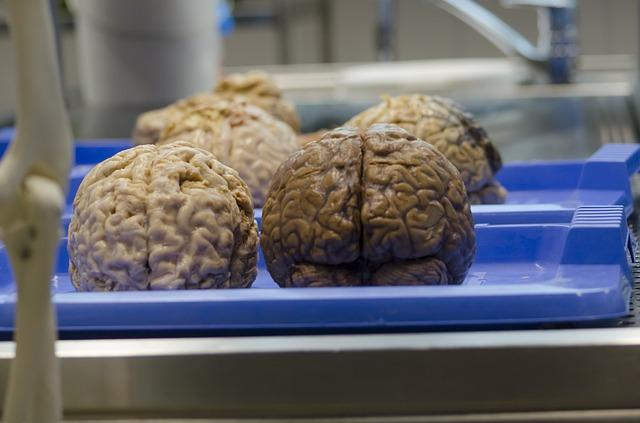the-brain-470742_640.jpg